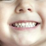 Remédio para asma podecausar erosão em dentes de leite