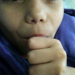 FORP seleciona crianças que chupam o dedo para tratamento ortodôntico