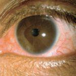 Vírus Zika causa inflamação no olho em adultos