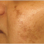 Voluntária com manchas faciais para mais uma pesquisa