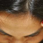FMRP procura voluntários com dor de cabeça