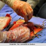 Cirurgia fetal ajuda a prevenir problemas de desenvolvimento em bebês