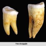 Segredos no esmalte dos dentes