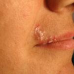 Pesquisa busca voluntários com herpes labial