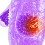 Câncer de mama no Saúde com Ciência e Jazz