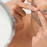 USP Ribeirão ainda busca homens com acne