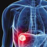 Câncer do fígado é tema do Saúde com Ciências e Jazz