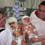 Simuladores ajudaram na separação de gêmeas siamesas