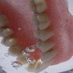 Odonto procura usuários de dentaduras com estomatite para pesquisa