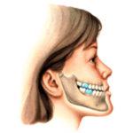 Odontologia recruta voluntários com alteração no crescimento facial