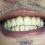 Pesquisa precisa de voluntários com implantes dentários